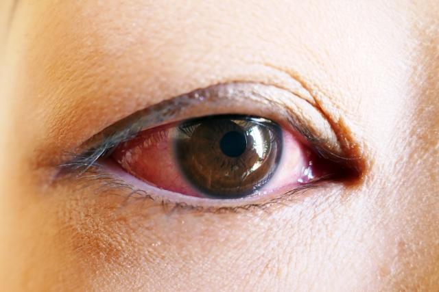 結膜炎は眼帯必須なの!?マナーとして目のマスクがエチケット!?